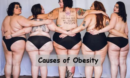 7 Causes of Obesity: Crucial Things to Avoid [Updated 2021]